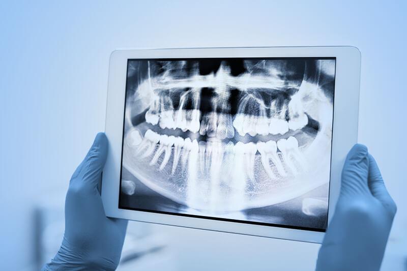 Parodontitisbehandlung Zahnarztpraxis Gummersbach